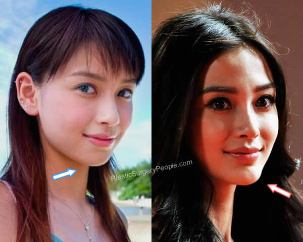 Angelababy Chin Implant Before and After
