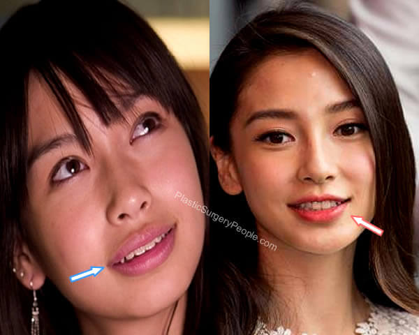 Angelababy lip reduction before and after