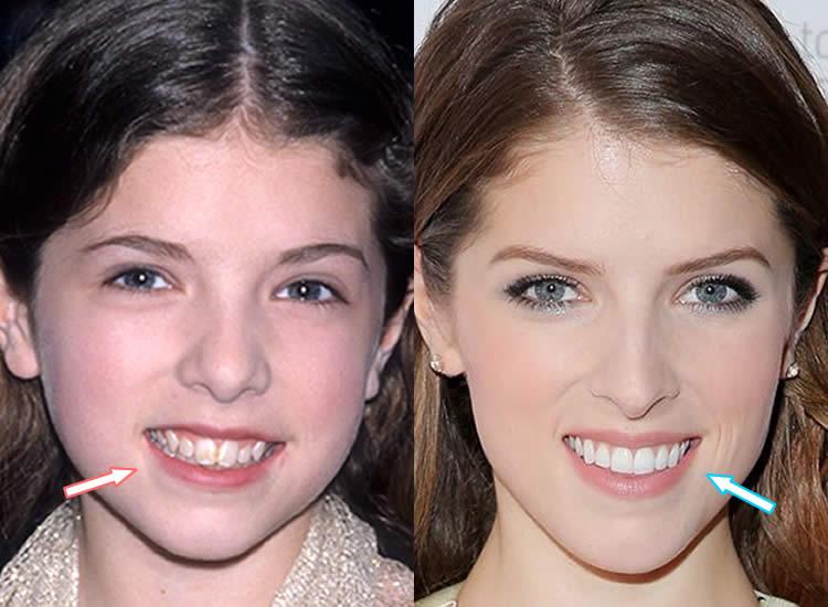 Did Anna Kendrick Get Dental Work On Her Teeth?