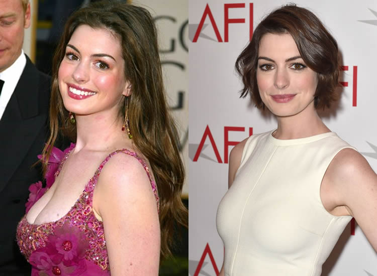 Has Anne Hathaway Had a Boob Job?