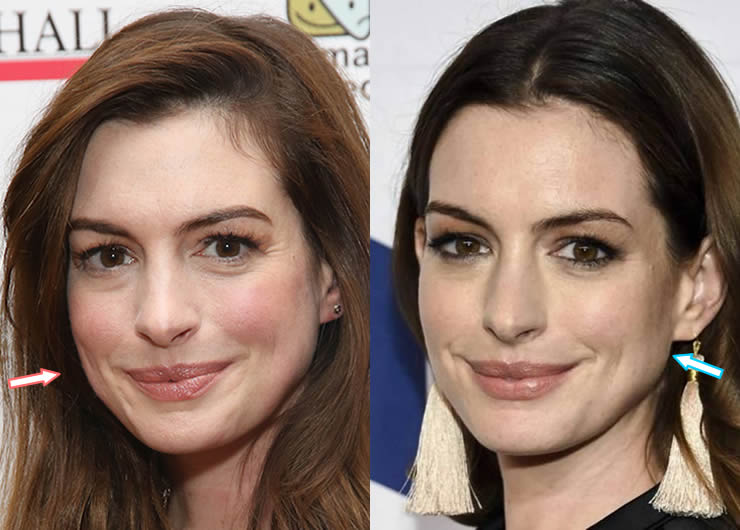 Did Anne Hathaway Get Botox or Facelift?