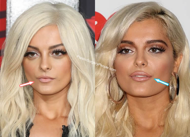 Does Bebe Rexha Have Lip Injections?