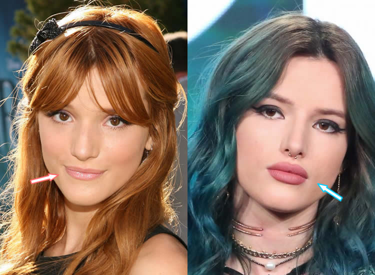 Does Bella Thorne Have Lip Injections?
