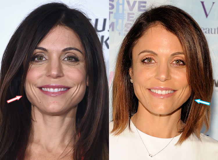 Did Bethenny Frankel Get Face Lift & Botox Injections?