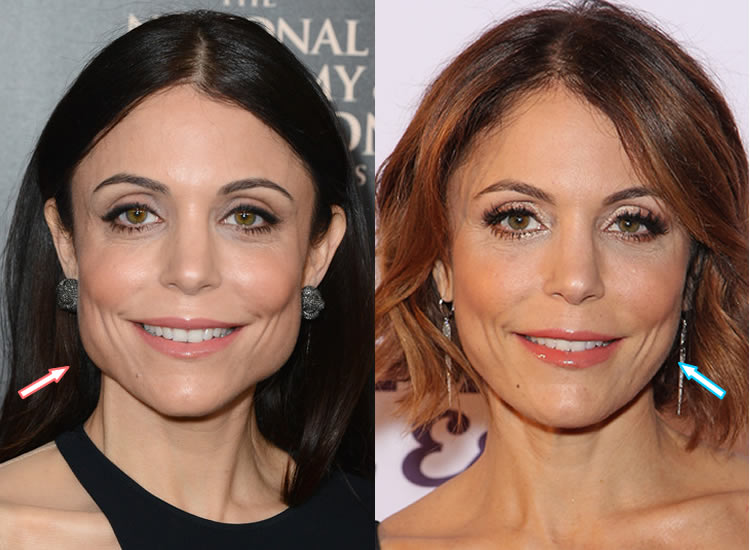 Did Bethenny Frankel Have Jaw Surgery?