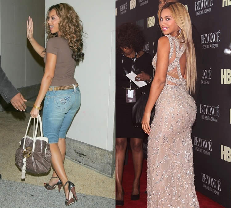 Has Beyonce Had Butt Implants?