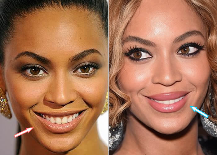Does Beyonce Have Lip Injections?