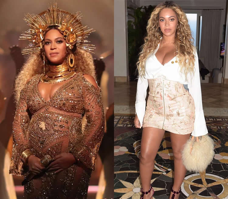 Did Beyonce Have Tummy Tuck & Liposuction?