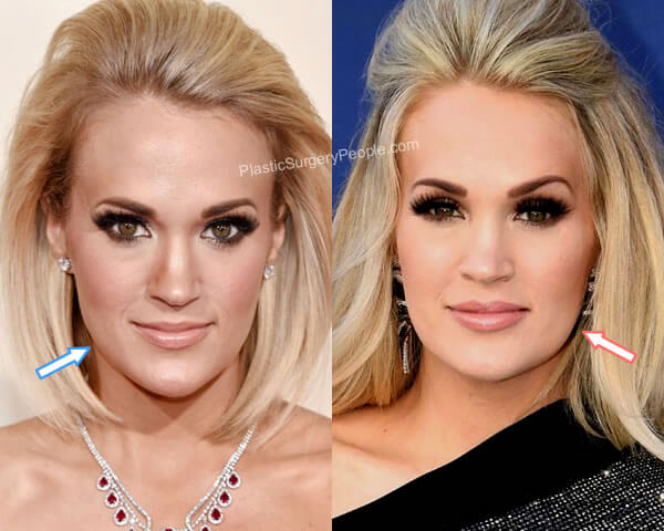 Carrie Underwood botox before and after?
