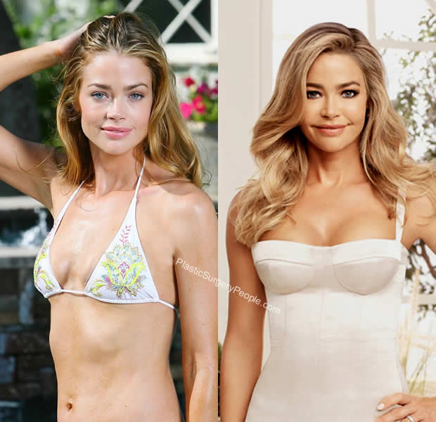 Denise Richards breast implants before and after
