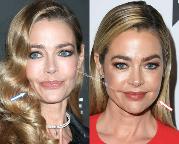 Denise Richards facelift before and after
