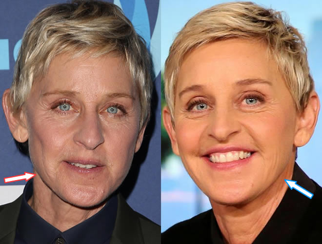 Does Ellen DeGeneres Have Botox?