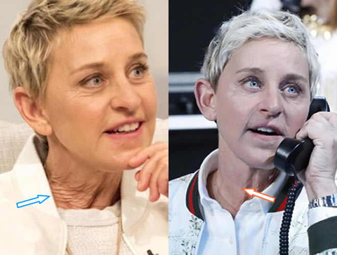 Did Ellen DeGeneres Get a Neck Lift?