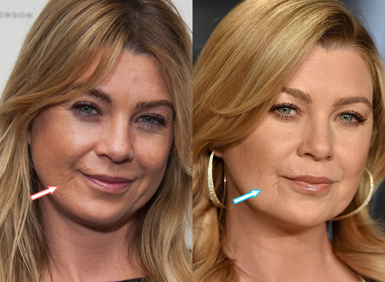 What happened to Ellen Pompeo's face and lip scar?