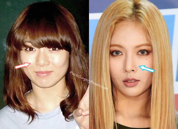 Hyuna nose job before and after