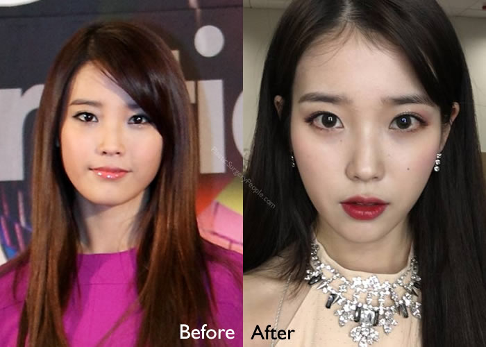 IU Before and After