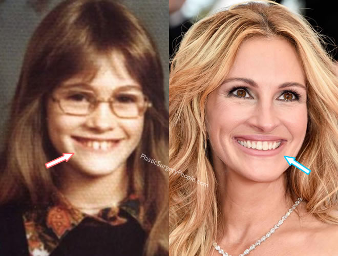 Julia Roberts teeth before and after