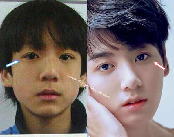 Jungkook eyes before and after