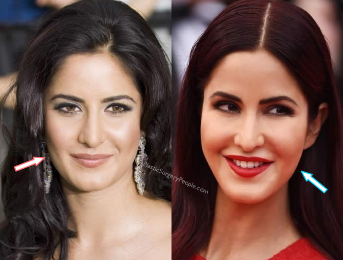 Does Katrina Kaif have botox?