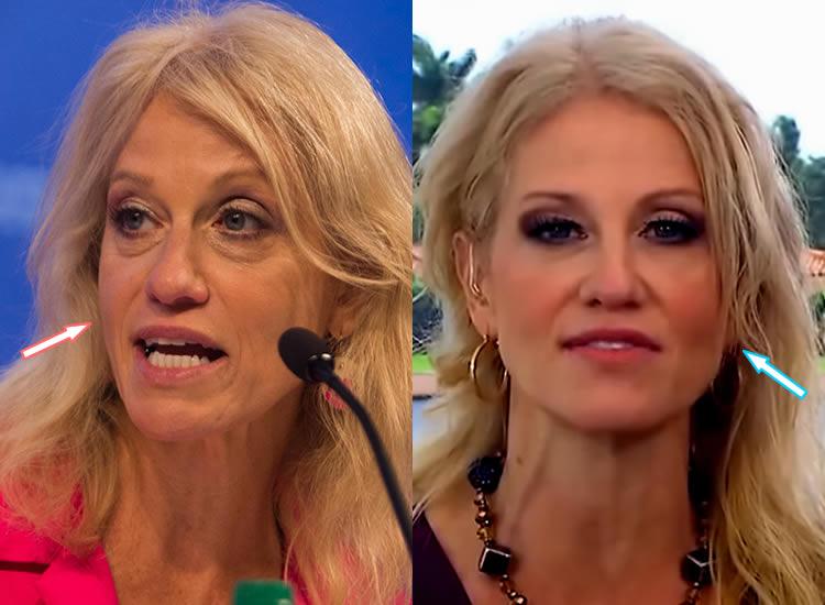 Has Kellyanne Conway Had Botox?