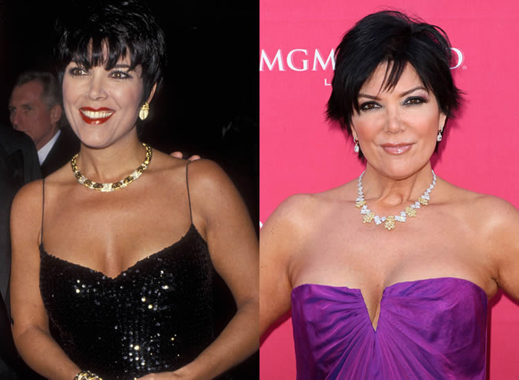 Has Kris Jenner Had Boob Job?