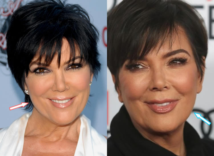 Does Kris Jenner Use Botox or Face Fillers?