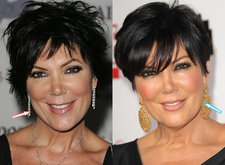 Did Kris Jenner Have Facelift?