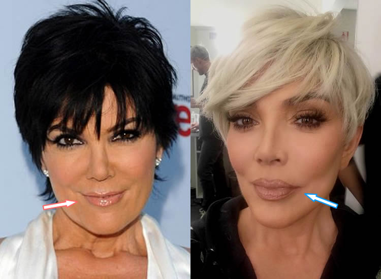 Did Kris Jenner Get Lip Injections?