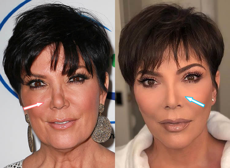 Has Kris Jenner Had a Nose Job?