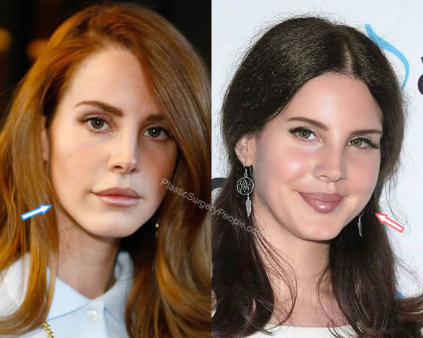 Lana Del Rey botox before and after