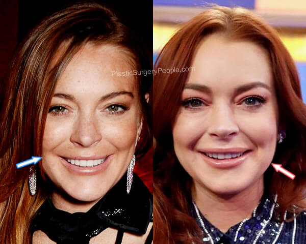 Lindsay Lohan botox before and after?