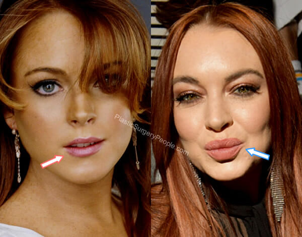 Lindsay Lohan lip injections before and after?