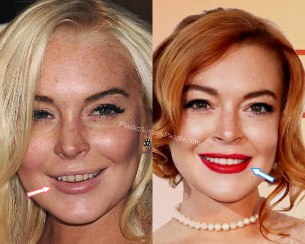 Lindsay Lohan teeth before and after