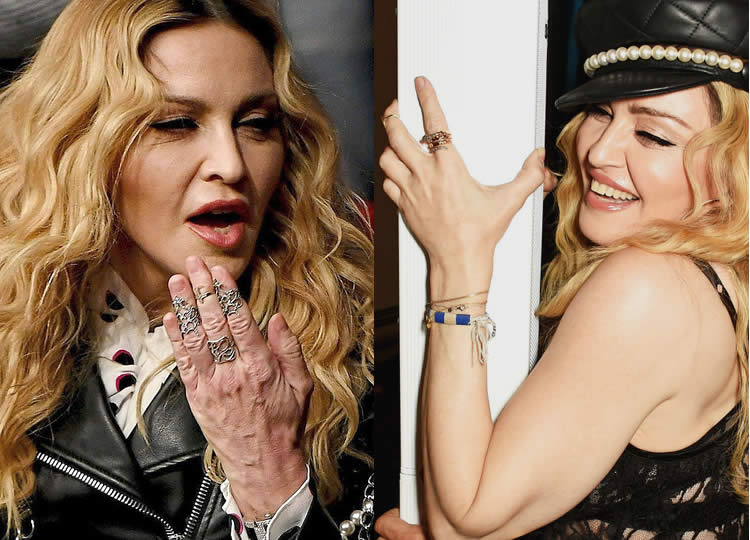 What Happened To Madonna's Hands?