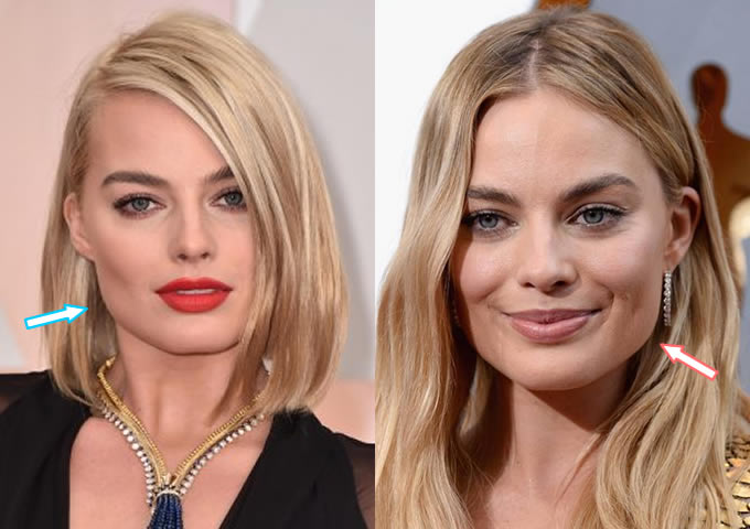 Did Margot Robbie Get Botox?