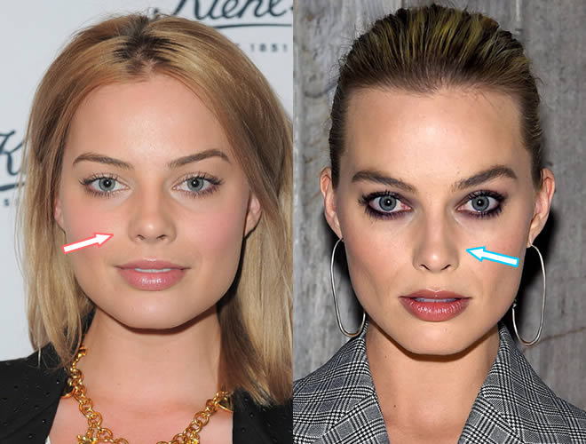 Did Margot Robbie Have Nose Job?