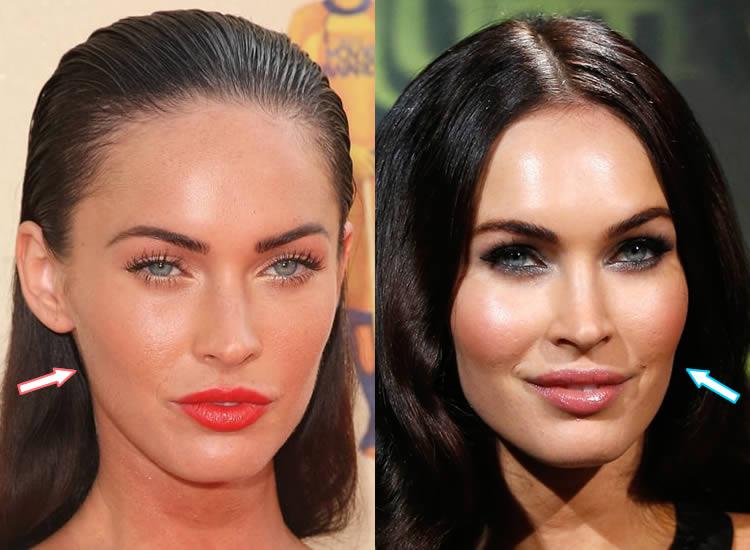 Has Megan Fox Had Botox?