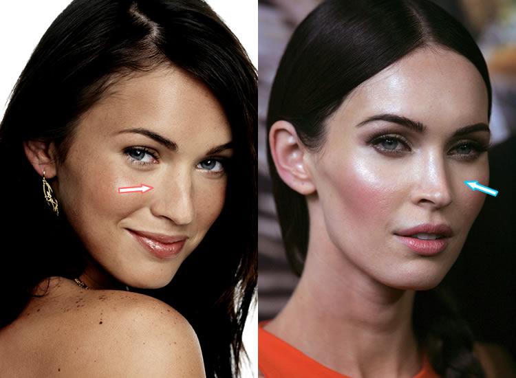 Did Megan Fox Have Nose Job?