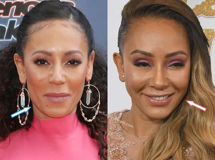 Did Mel B Get Botox?