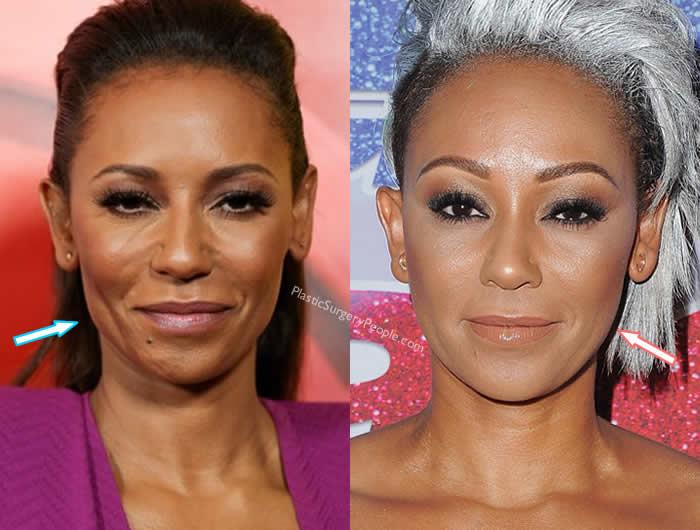 Has Mel B Had Facelift?