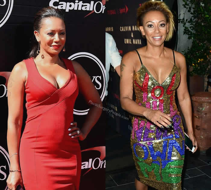 How did Mel B lose weight?
