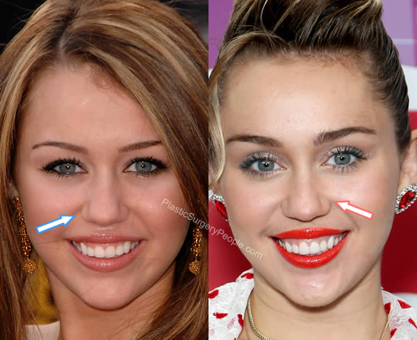 Miley Cyrus Nose Job Before and After