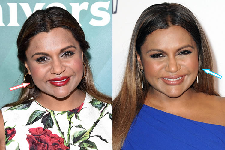 Has Mindy Kaling Had Botox And Face lift?