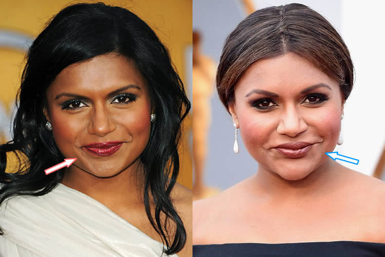 Did Mindy Kaling Have Lip Injections?