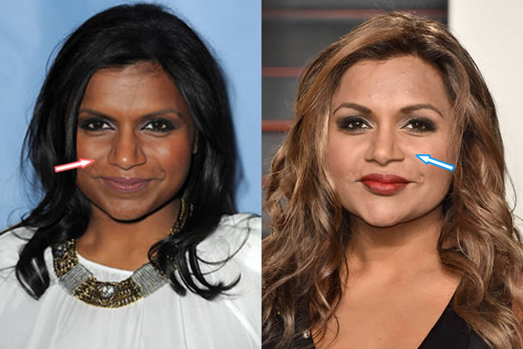 Does Mindy Kaling Have A Nose Job?