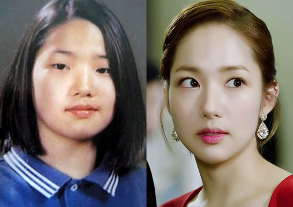 Park Min Young Before and After Plastic Surgery?