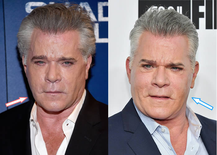 Has Ray Liotta Had Botox?