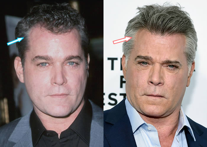 Did Ray Liotta Get Hair Transplant?