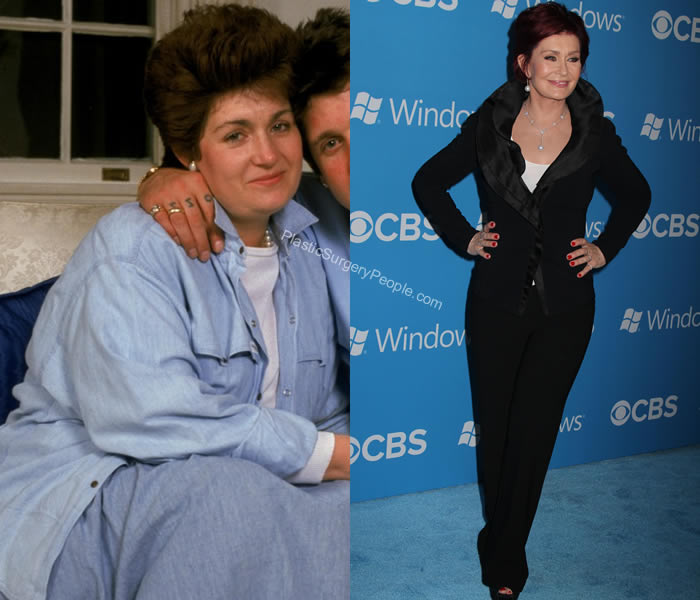 Sharon Osbourne body surgeries before and after