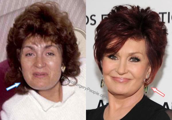 Sharon Osbourne facelift before and after